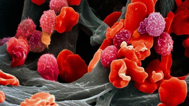 novo tratamento contra o cancer
